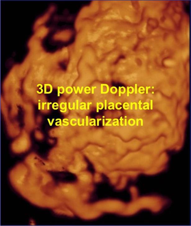 Morbid adherent placenta